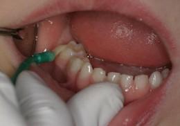 fluoride treatment shreveport bossier kids