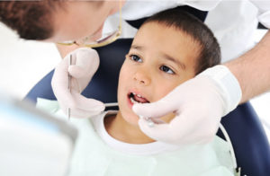 tooth colored fillings for kids