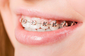 limited orthodontics for kids